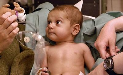 beteg-kisgyerek400-1455346081.jpg