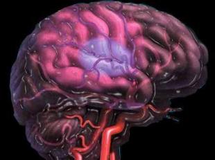 brain-stroke-1369925552.jpg