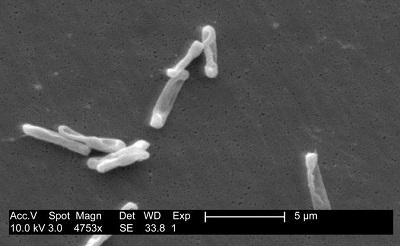 clostridium-difficile-em400-1384837611.jpg